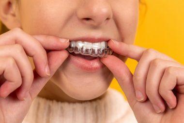 Létezik más típusú esztétikus fogyszabályzó?